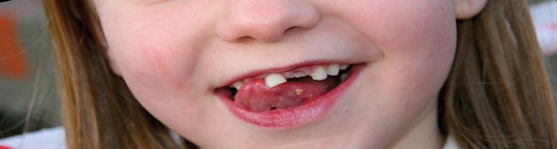 Pediatrische tandheelkunde en homeopathie foto metazahren-com