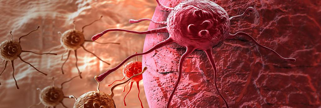 kanker en homeopathie