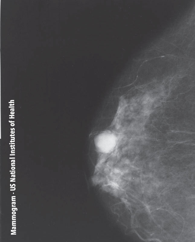 Mammogram - US National Institutes of Health